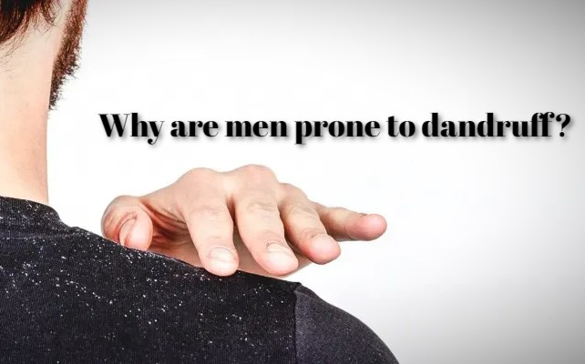 Why are men prone to dandruff?